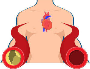 CHELATION THERAPY